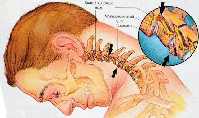 Смещение позвонков шейного отдела лечениеСмещение позвонков шейного отдела лечение