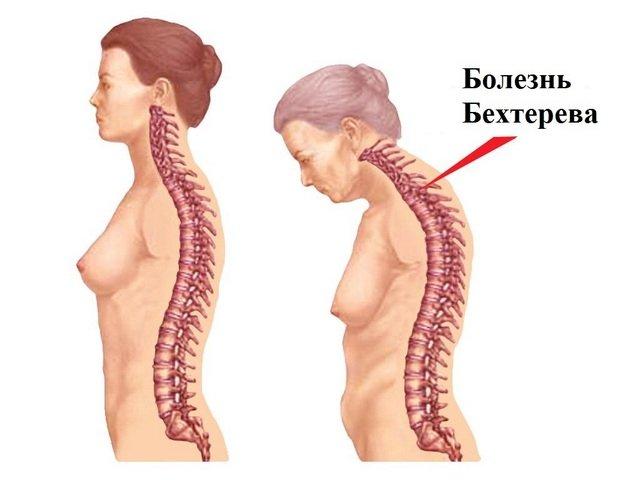 Болезнь Бехтерева раньше встречалась только у мужчин, но в последнее десятилетие зафиксированы случаи и у женщин