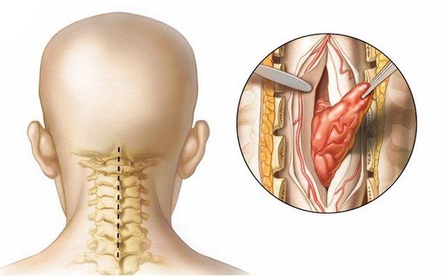 Доброкачественная опухоль более «мягкая» и избавиться от нее проще, чем от злокачественной, которая отличается скоростью развития и возникновением осложнений