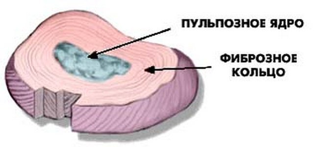 Схема-изображение межпозвонкового диска – места, откуда начинается развитие грыжи