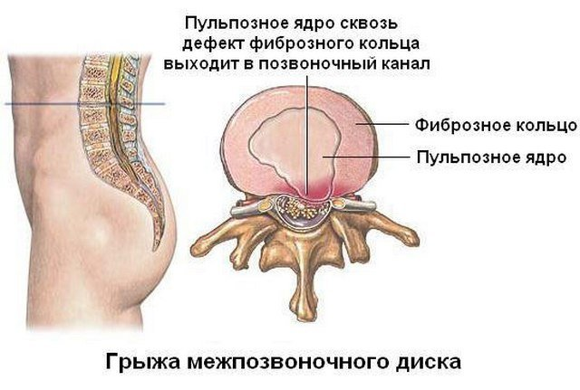 Межпозвоночный диск, несмотря на свою прочность, все же может повредиться, в результате чего возникнет грыжа