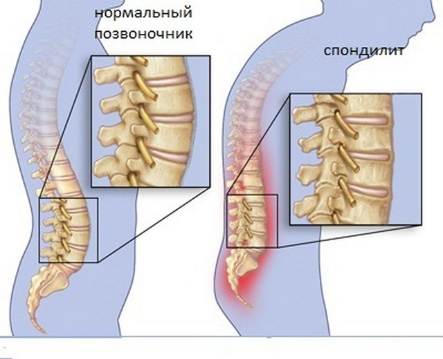 Анкилозирующий спондилит буквально заставляет человека ходить «согнутым» и испытывать постоянные болевые ощущения