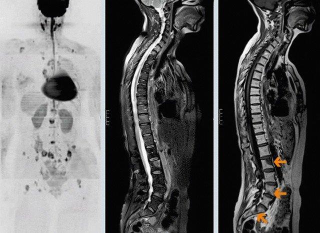 Метастазы при раке позвоночника могут распространиться практически по всему организму, затронув любые органы