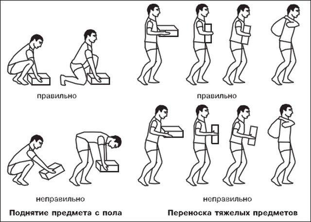 Чтобы избежать возникновения грыжи, поднимать тяжести и переносить их нужно правильно