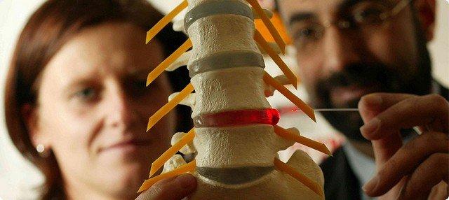 Грыжа грудного отдела позвоночника на трехмерной модели