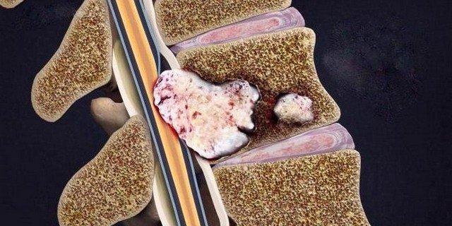 Если вовремя не начать лечения рака позвоночника, из-за распространения метастазов могут возникнуть осложнения