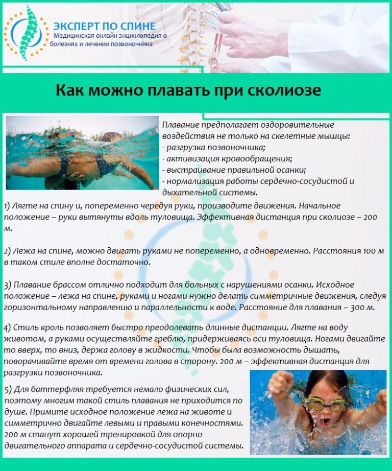 Лучший вид плавания при сколиозе
