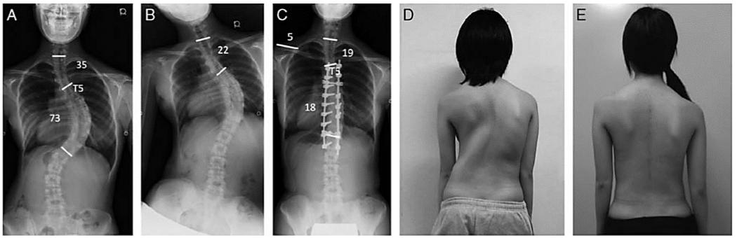 Оперативное лечение идиопатического сколиоза