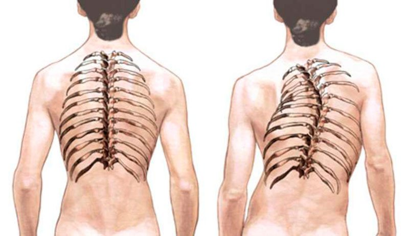 Сколиоз грудного отдела