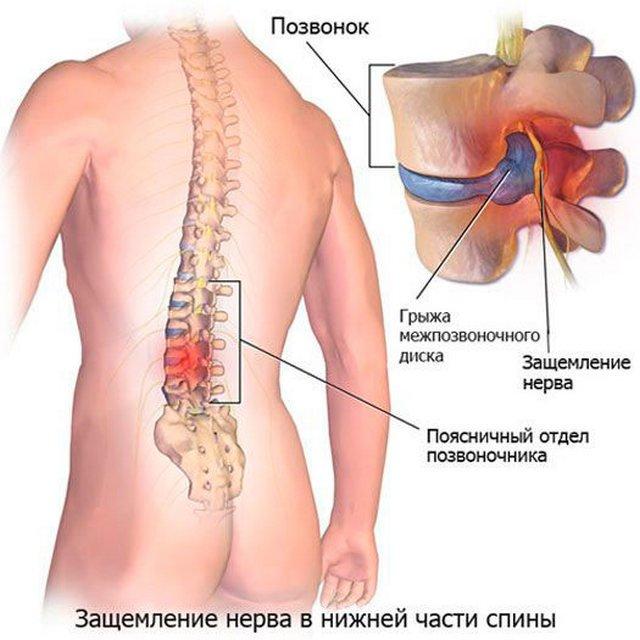 Ущемление нерва в поясничном отделе позвоночника лечение