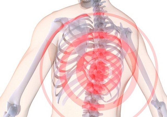 Хондроз грудного отдела позвоночника: симптомы и лечение