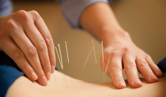 Иглоукалывание - нестандартный, но действенный метод лечения протрузии