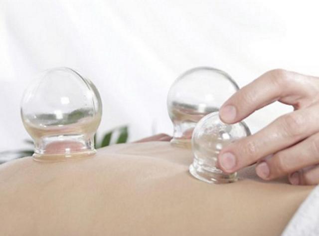 Баночный массаж – эффективнейший метод в борьбе с болью в пояснице
