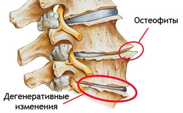 Остеофит – причина появления более серьёзных заболеваний позвоночника