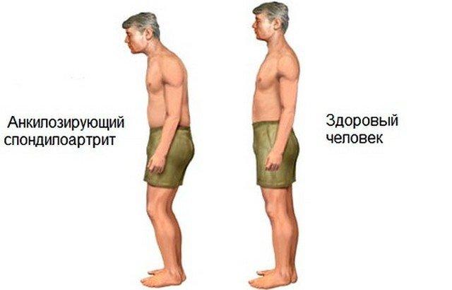 Спондилит – часто встречающаяся проблема у мужчин и людей пожилого возраста