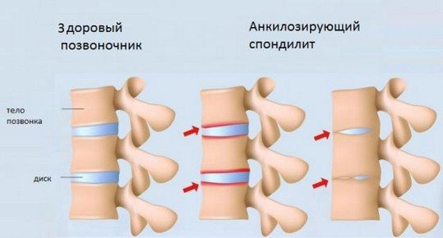 При анкилозирующем спондилите позвонки, межпозвоночные диски и суставы постепенно срастаются между собой
