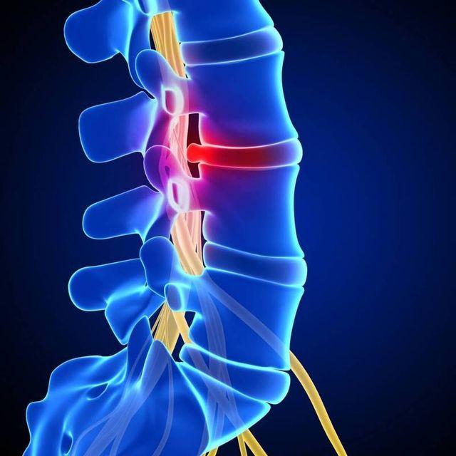 Остеохондроз – самое частое заболевание позвоночника в мире что у мужчин, что у женщин