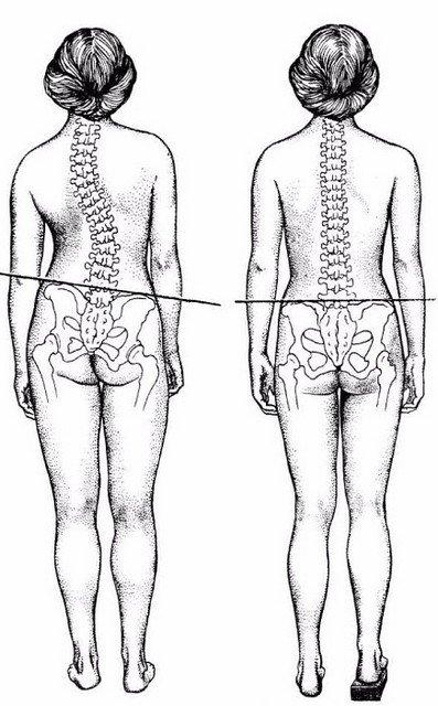 Смещение костей таза довольно часто встречается у рожавших женщин. Такая патология может стать поводов для развития инфекций в области таза