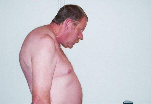 С болезнью Бехтерева по неизвестной причине чаще всего сталкиваются мужчины