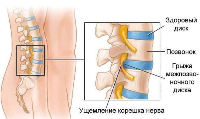 Межпозвоночная грыжа – достаточно частая причина защемленного нерва
