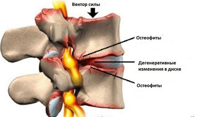 Остеофит – ужасная болезнь, которая, судя по всему, появляется отовсюду