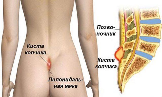 Копчиковая киста – заболевание крайне опасное, и избавиться от него можно только при помощи операции