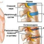 Строение позвоночника, его отделы и функции, сколько позвонков у человека