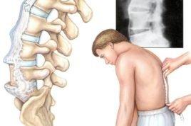 Спондилит – болезнь, которая чаще всего появляется из-за попавшей в организм инфекции