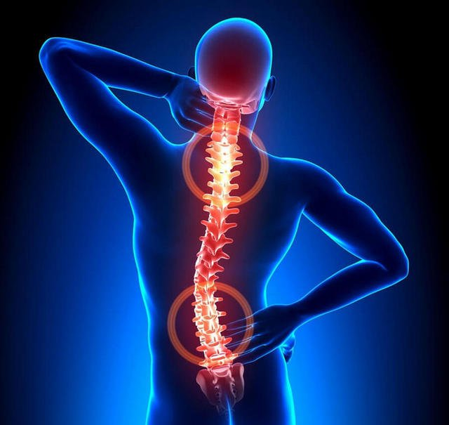 Остеохондроз встречается часто, и, если его не лечить, он может стать причиной боли в копчике у женщин