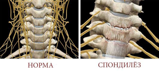 Спондилез с остеофитами – опасное заболевание, которое может сковывать ваши движения