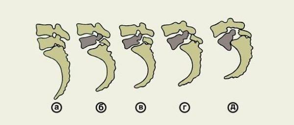 5 степеней тяжести спондилолистеза