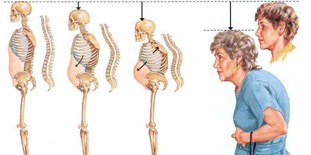 С остеопорозом вы можете «заработать» себе много хлопот, поскольку становитесь значительно уязвимее