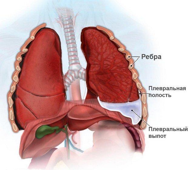 Даже такое заболевание легких, как плеврит, может стать причиной болей между лопатками