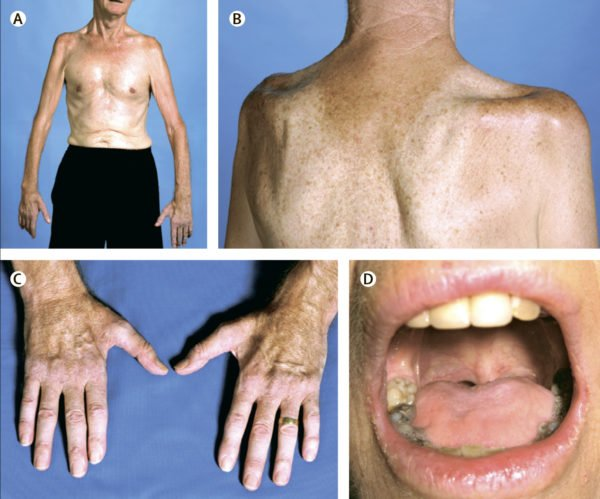 Боковой амиотрофический склероз (БАС) — это неизлечимое прогрессирующее заболевание ЦНС, при котором у больного наблюдается поражение ... заболевания относятся крампы (болезненные мышечные спазмы), вялость и слабость в области дистальных отделов рук, бульбарные расстройства