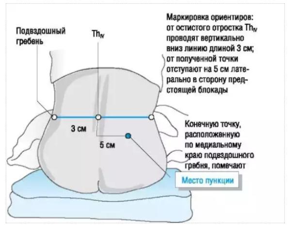 Анатомические ориентиры при блокаде сплетения в фасциальном ложе поясничной мышцы