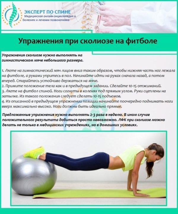 Упражнения при сколиозе на фитболе