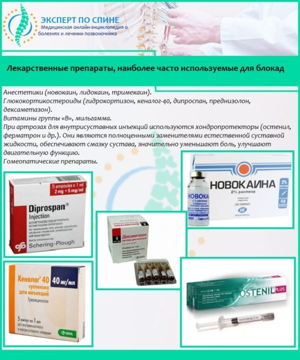 Лекарственные препараты, наиболее часто используемые для блокад