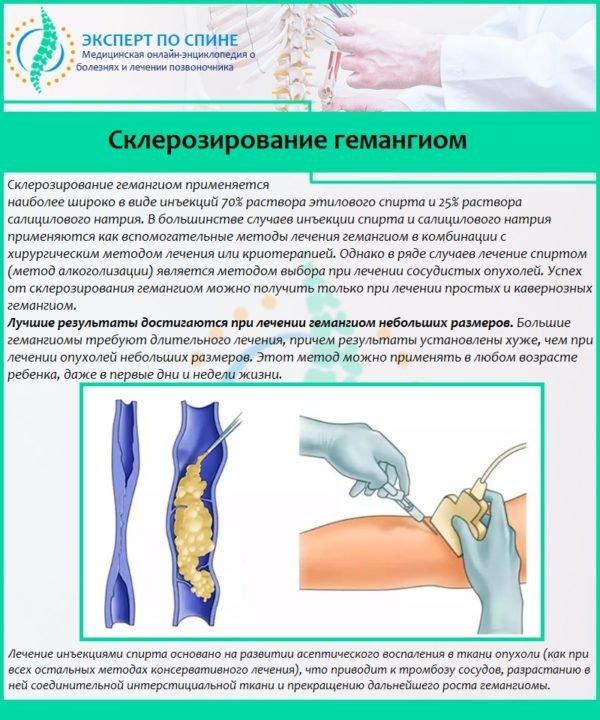 Склерозирование гемангиом