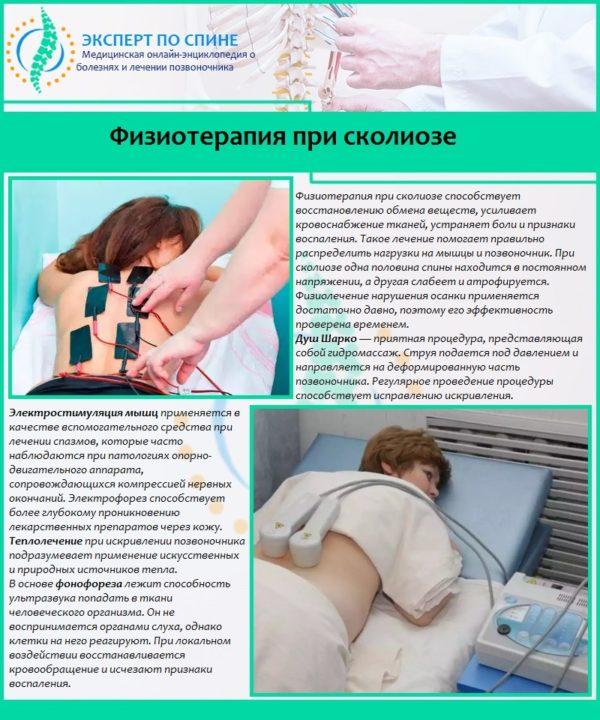 Физиотерапия при сколиозе
