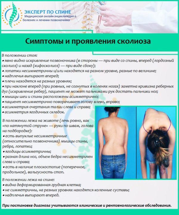 Симптомы и проявления сколиоза