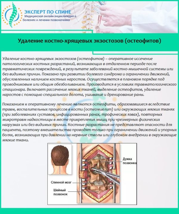 Удаление костно-хрящевых экзостозов (остеофитов)