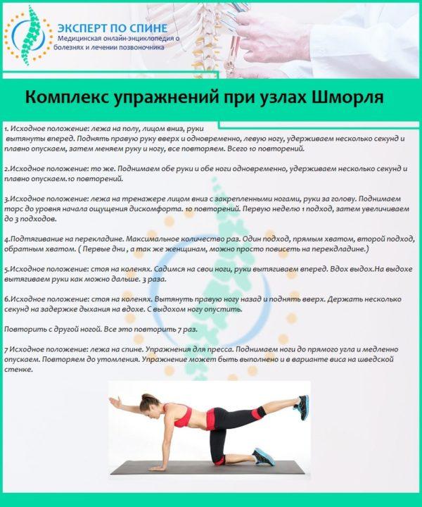 Комплекс упражнений при узлах Шморля