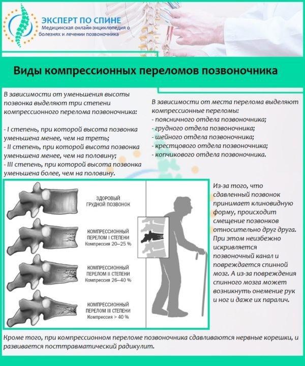 Виды компрессионных переломов позвоночника