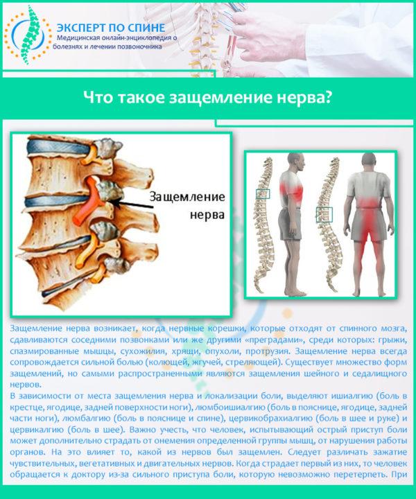 Что такое защемление нерва