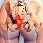 Причины боли в области копчика у женщин при сидении