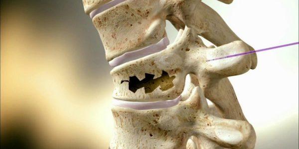 Данный вид перелома проявляется в остеопорозных костях