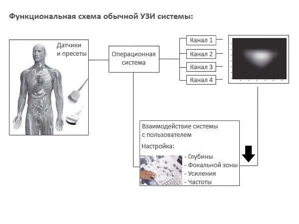 Функциональная схема традиционной системы УЗИ