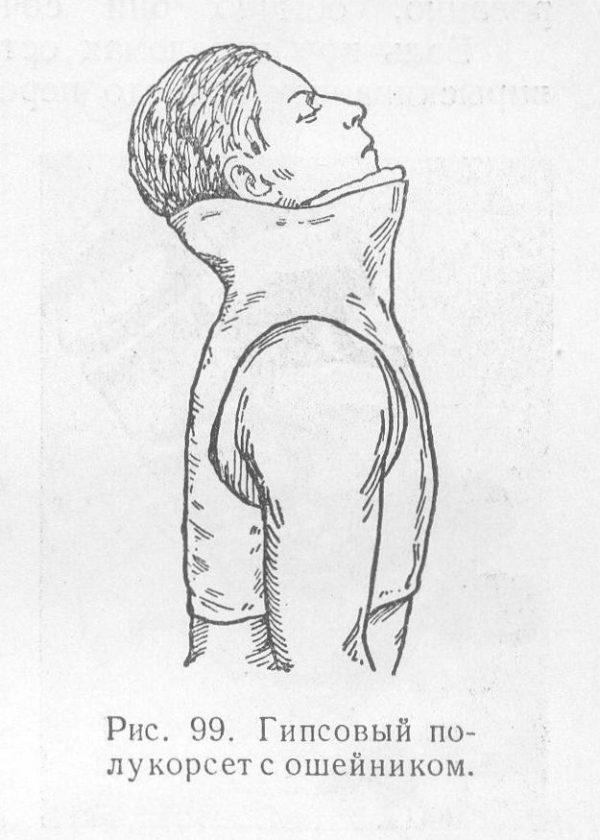 Гипсовый полукорсет с ошейником