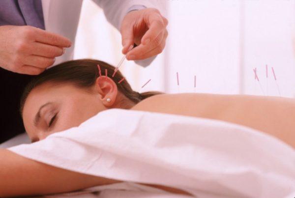 Иглоукалывание помогает ослабить боль в спине