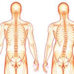 Кривой позвоночник и горб